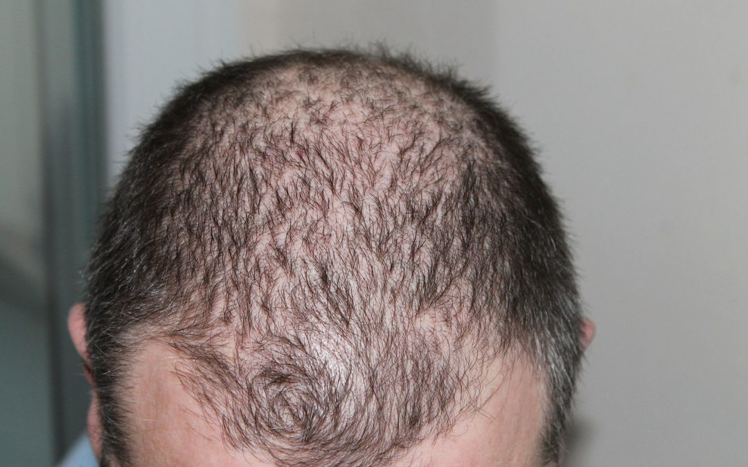 Stopping Hair Loss